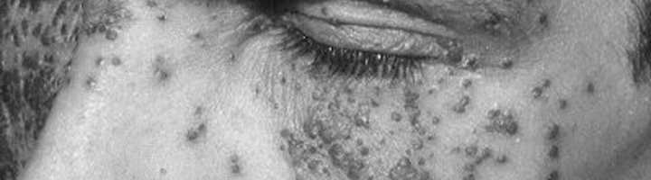 Eczema herpeticum bij de ogen