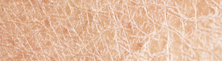 Ichthyosis (vissenschubziekte) huid