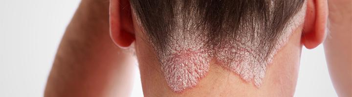 Psoriasis Capitis (psoriasis van de hoofdhuid)