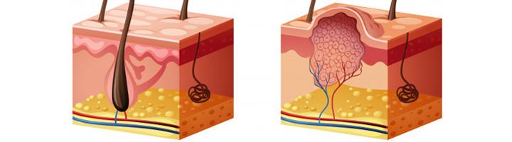 gezonde huid vs huid met wrat