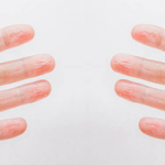 Dyshidrosis lamellosa sicca (DLS)